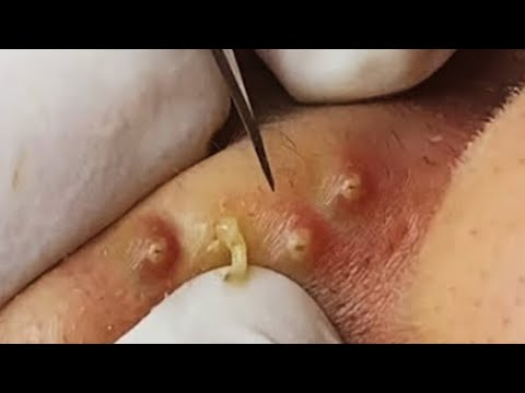 Big Cystic Acne Blackheads Extraction Blackheads & Milia, Whiteheads Removal Pimple Popping #NS133 [Video]
